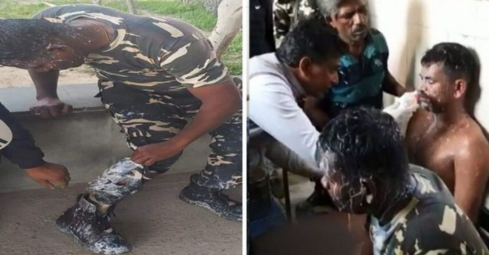 Acids Were Thrown At Paramilitary Forces In Delhi